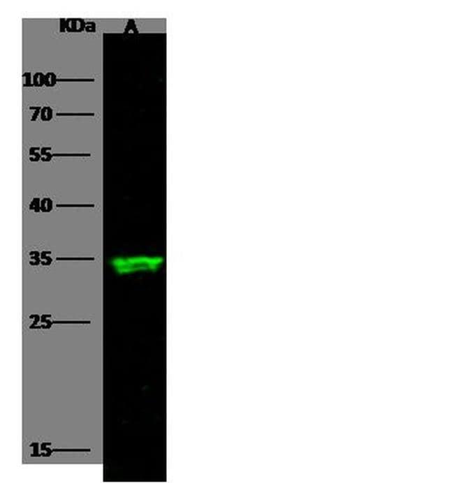 ARD1A Antibody in Western Blot (WB)