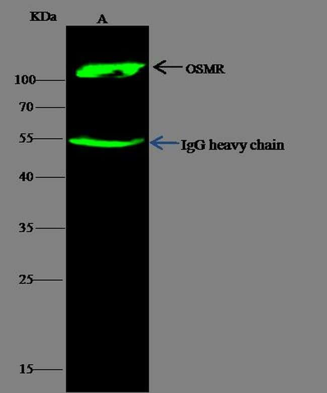 OSMR Antibody in Immunoprecipitation (IP)