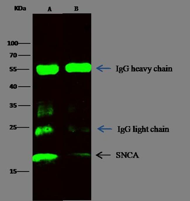 alpha Synuclein Antibody in Immunoprecipitation (IP)
