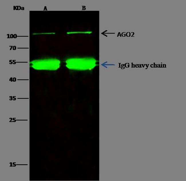 AGO2 Antibody in Immunoprecipitation (IP)