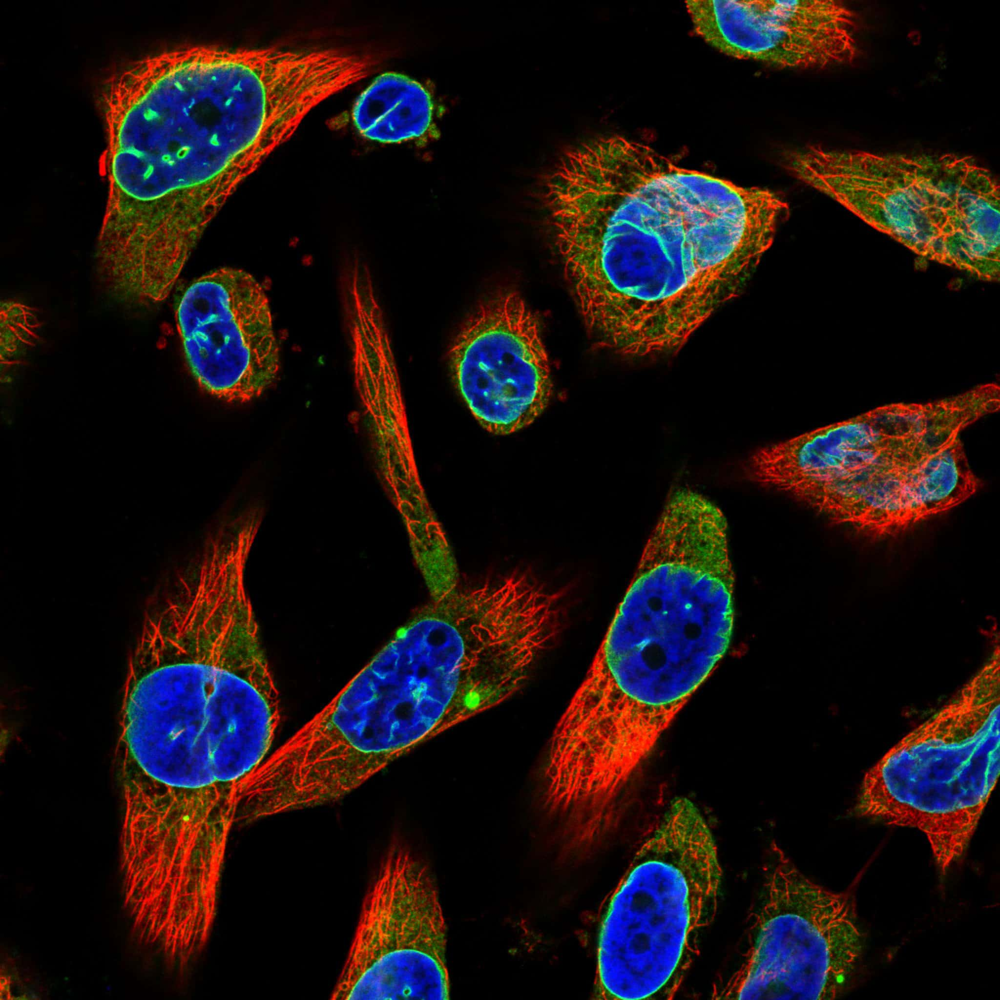 Emerin Antibody in Immunofluorescence (IF)