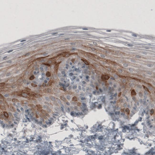 HMGCR Antibody in Immunohistochemistry (IHC)