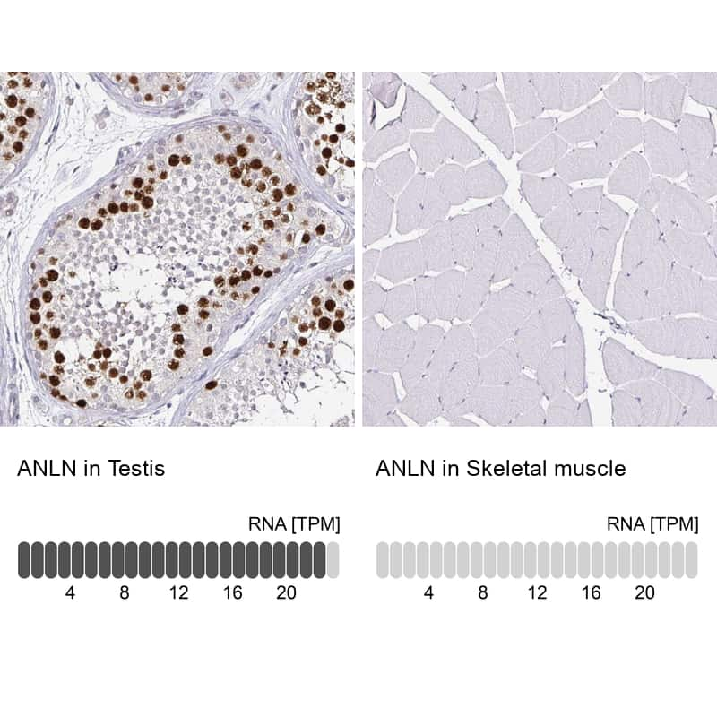 Anillin Antibody in Relative expression