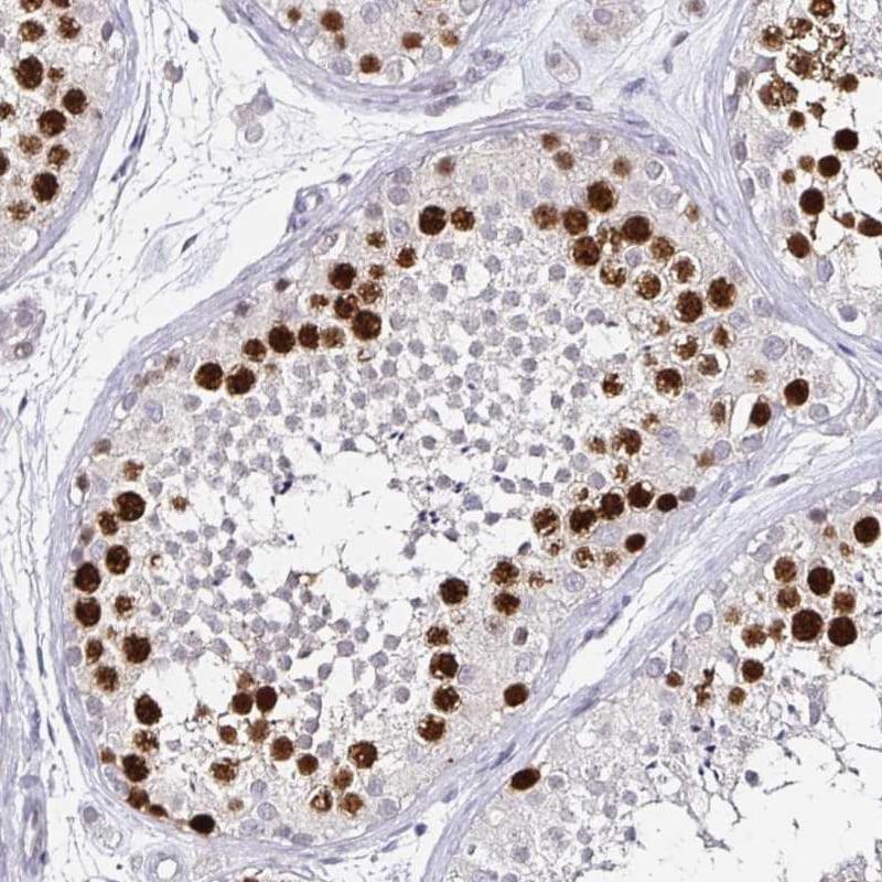 Anillin Antibody in Immunohistochemistry (IHC)