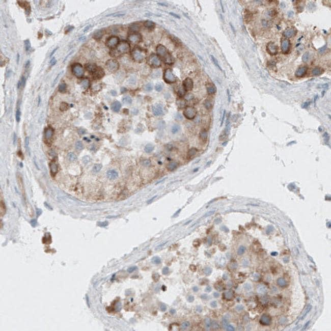Dicer Antibody in Immunohistochemistry (IHC)