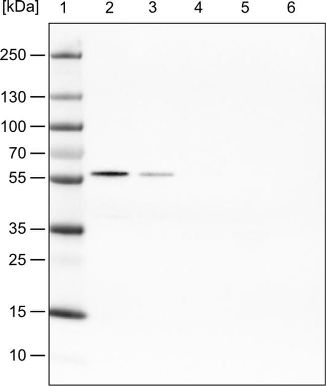 PHGDH Antibody in Western Blot (WB)
