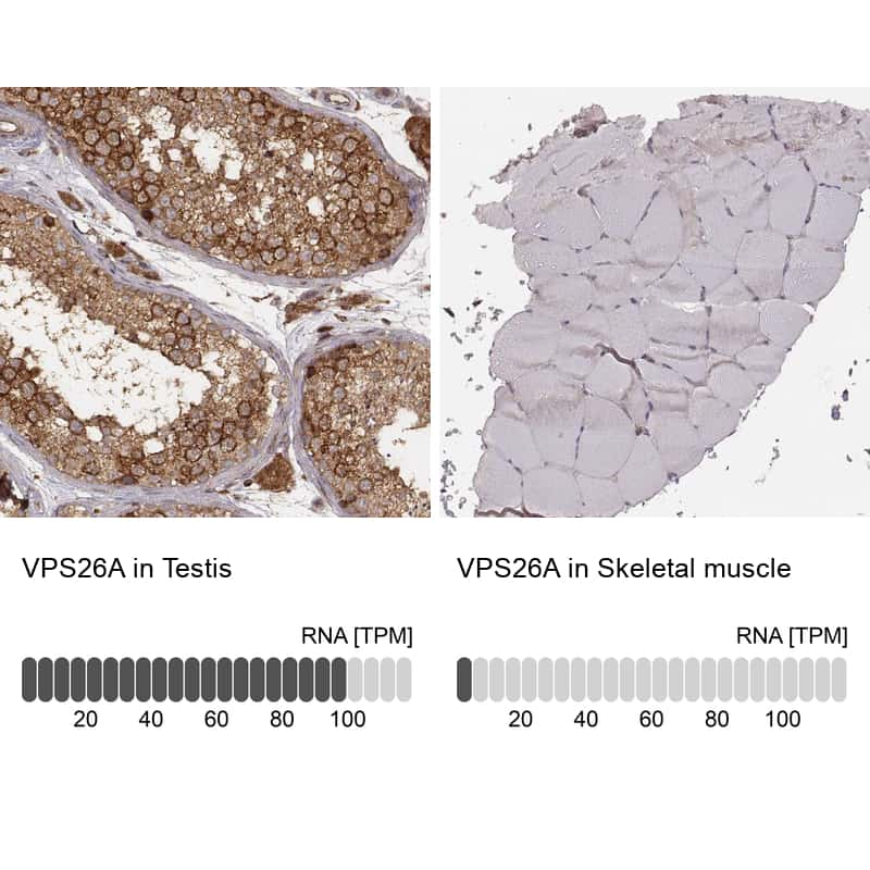 VPS26A Antibody in Relative expression