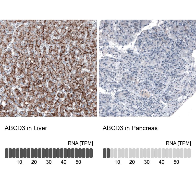 PMP70 Antibody in Immunohistochemistry (IHC)