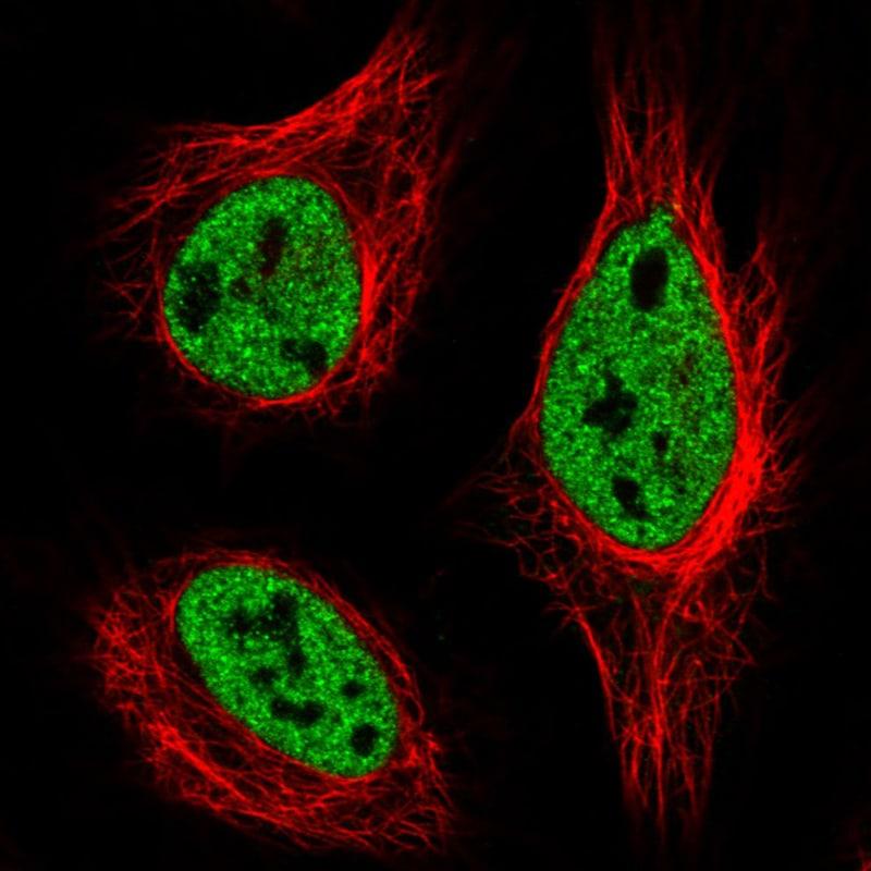 hnRNP C Antibody in Immunofluorescence (IF)