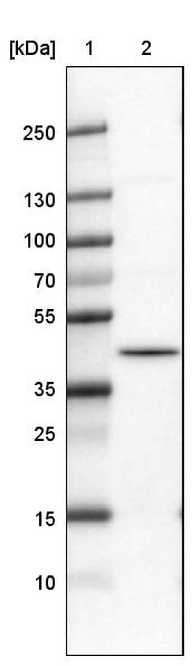 hnRNP C Antibody in Western Blot (WB)