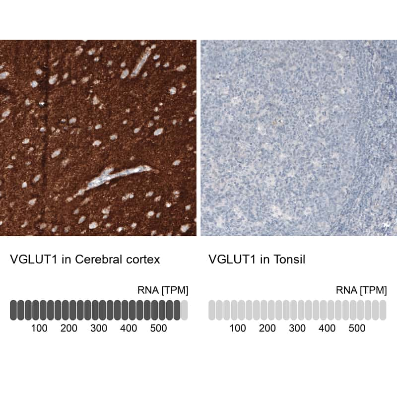 VGLUT1 Antibody in Relative expression