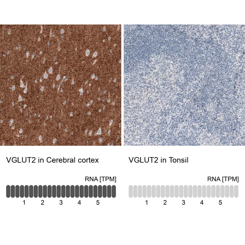 VGLUT2 Antibody in Relative expression