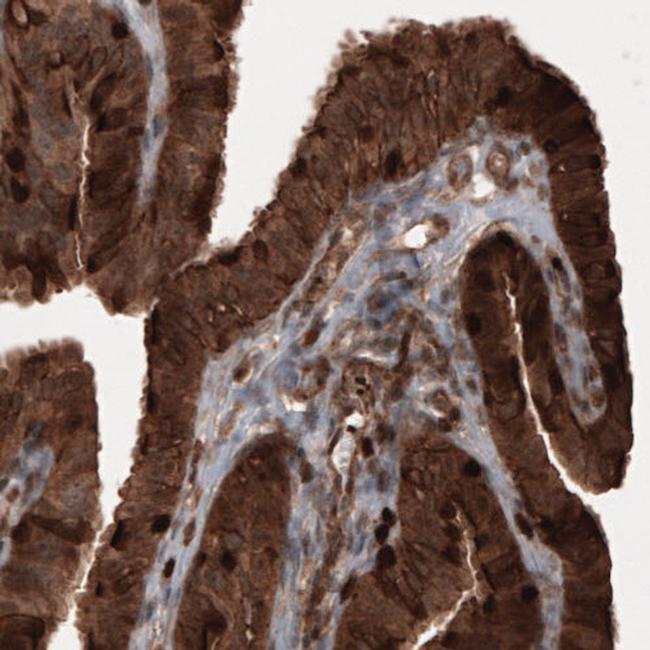 Profilin 1 Antibody in Immunohistochemistry (IHC)