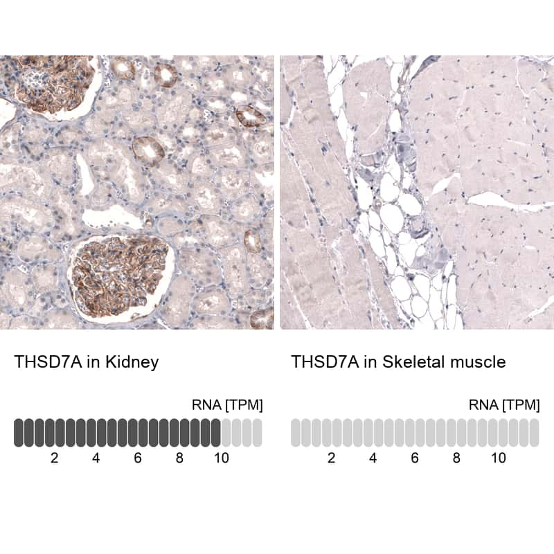 THSD7A Antibody in Relative expression