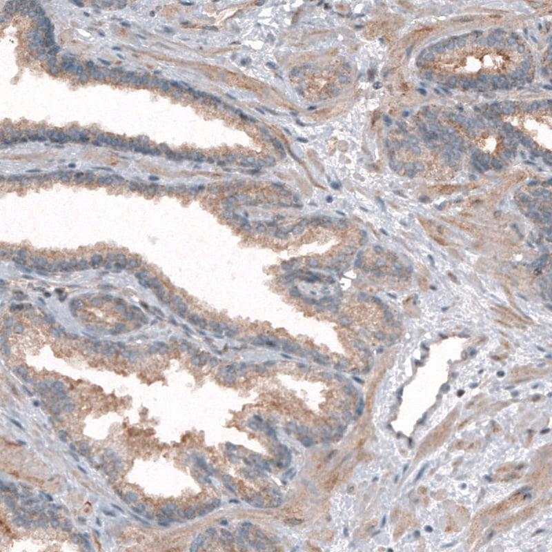 CLIP1 Antibody in Immunohistochemistry (IHC)