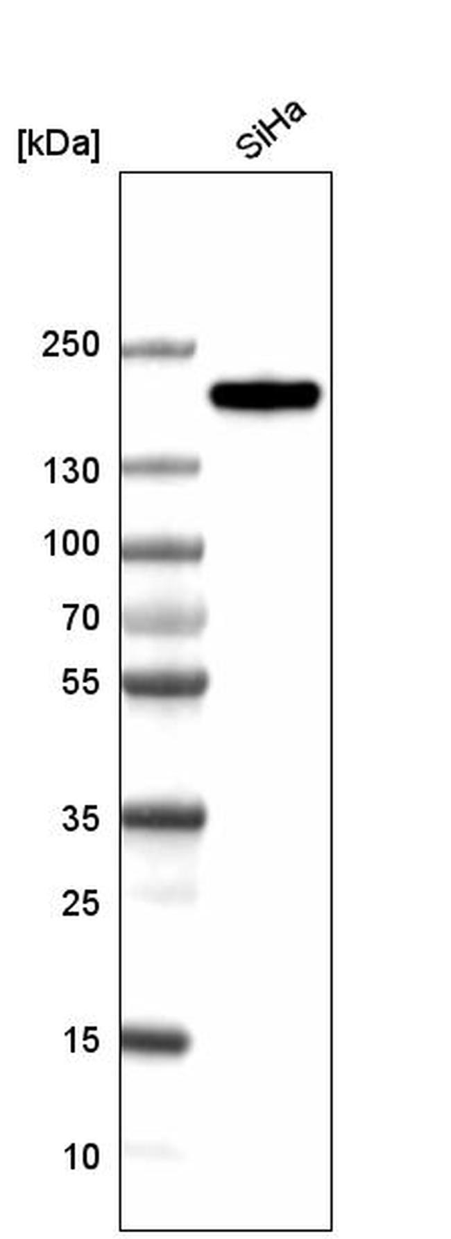 CLIP1 Antibody in Western Blot (WB)