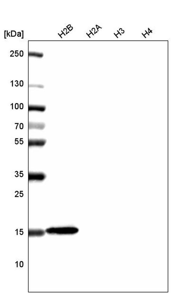 Histone H2B Antibody in Western Blot (WB)