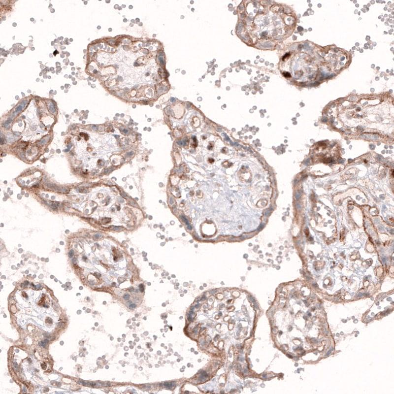 ROR2 Antibody in Immunohistochemistry (IHC)