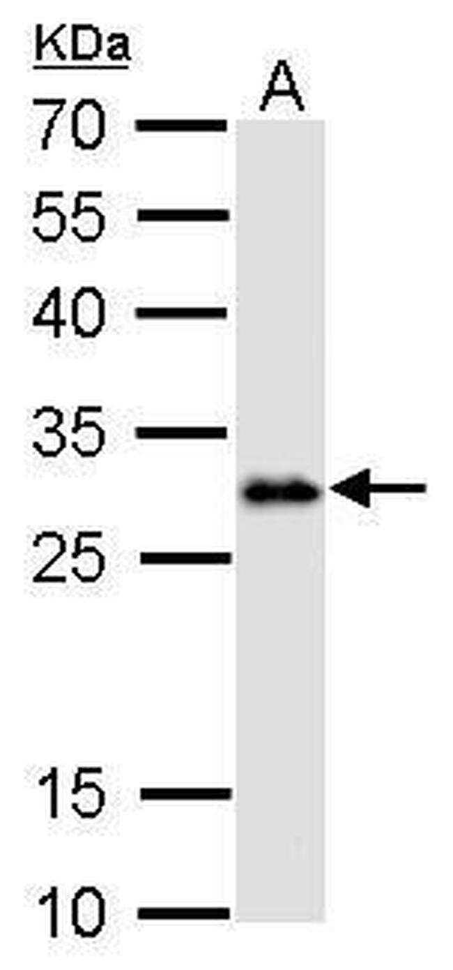 LIN28A Antibody in Western Blot (WB)