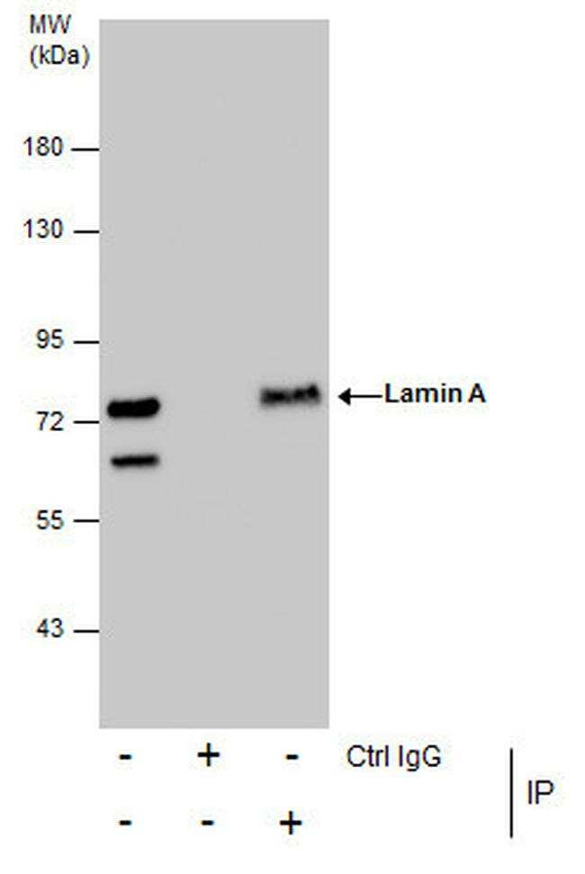 Lamin A/C Antibody in Immunoprecipitation (IP)