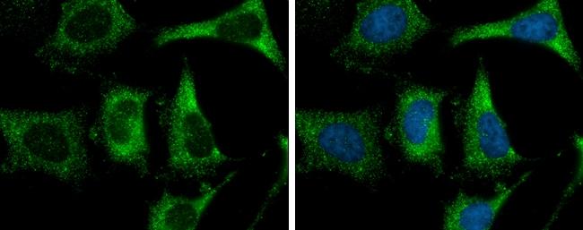 FASN Antibody in Immunofluorescence (IF)