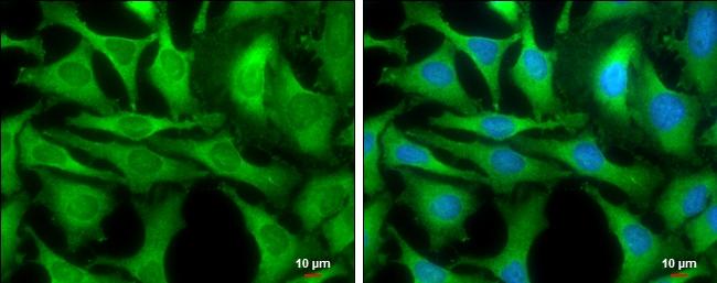 GOT1 Antibody in Immunocytochemistry (ICC)