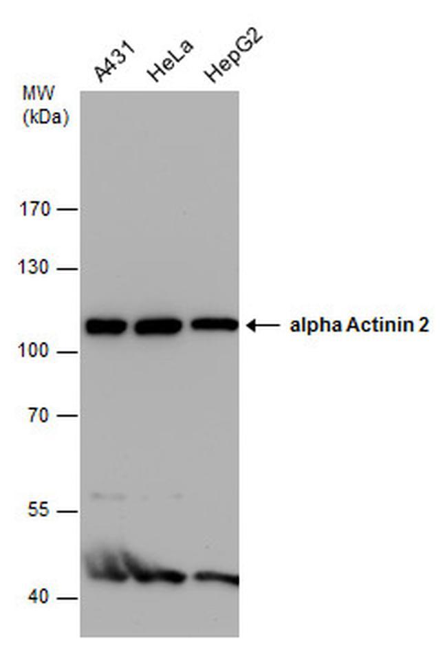 alpha Actinin 2 Antibody in Western Blot (WB)