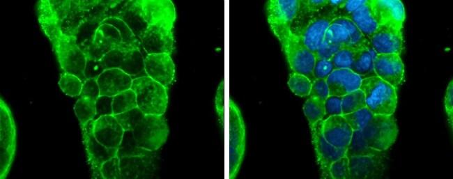 Glypican 3 Antibody in Immunofluorescence (IF)