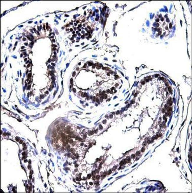 E2F1 Antibody in Immunohistochemistry (Paraffin) (IHC (P))