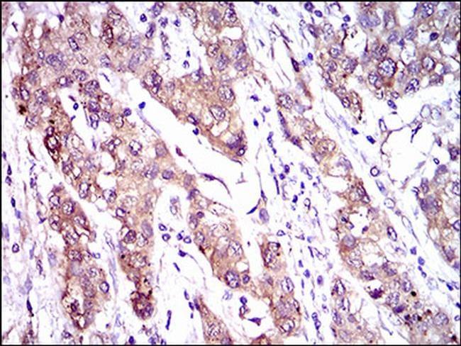 MRP4 Antibody in Immunohistochemistry (Paraffin) (IHC (P))