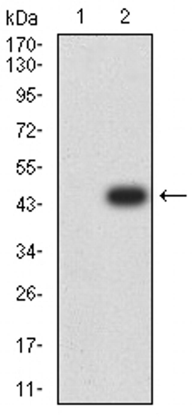 ADAR Antibody in Western Blot (WB)