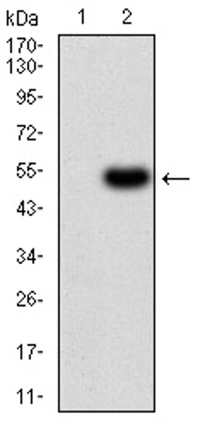 ALDH6A1 Antibody in Western Blot (WB)