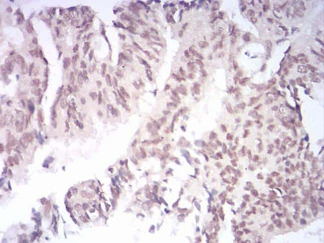 KDM1B Antibody in Immunohistochemistry (Paraffin) (IHC (P))