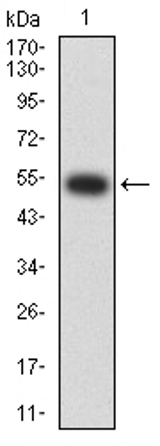 CHRNA2 Antibody in Western Blot (WB)