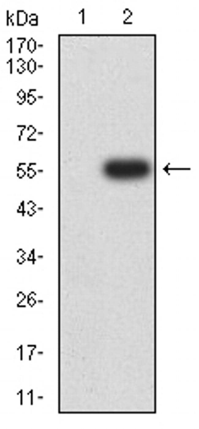 CHRNA5 Antibody in Western Blot (WB)