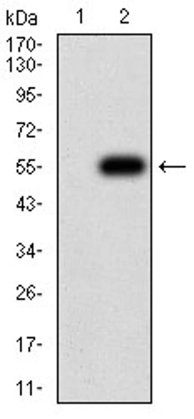 CHRNB4 Antibody in Western Blot (WB)