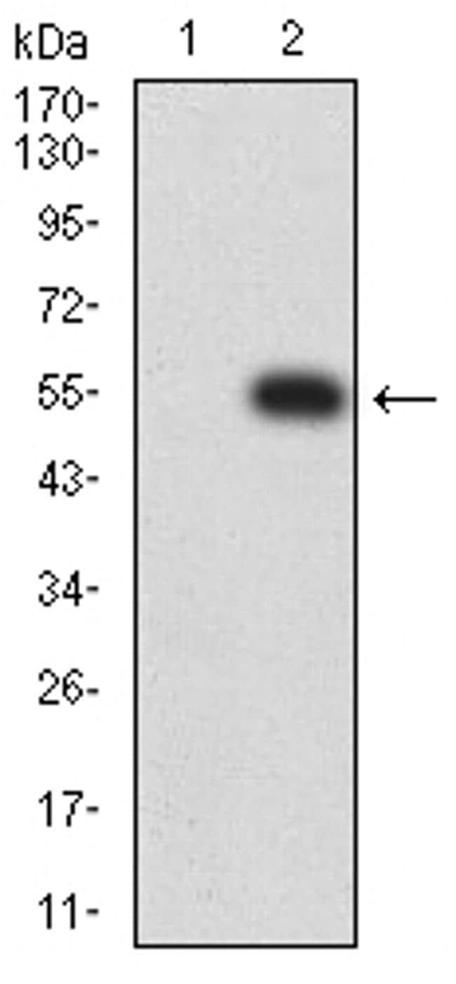 CHRNE Antibody in Western Blot (WB)