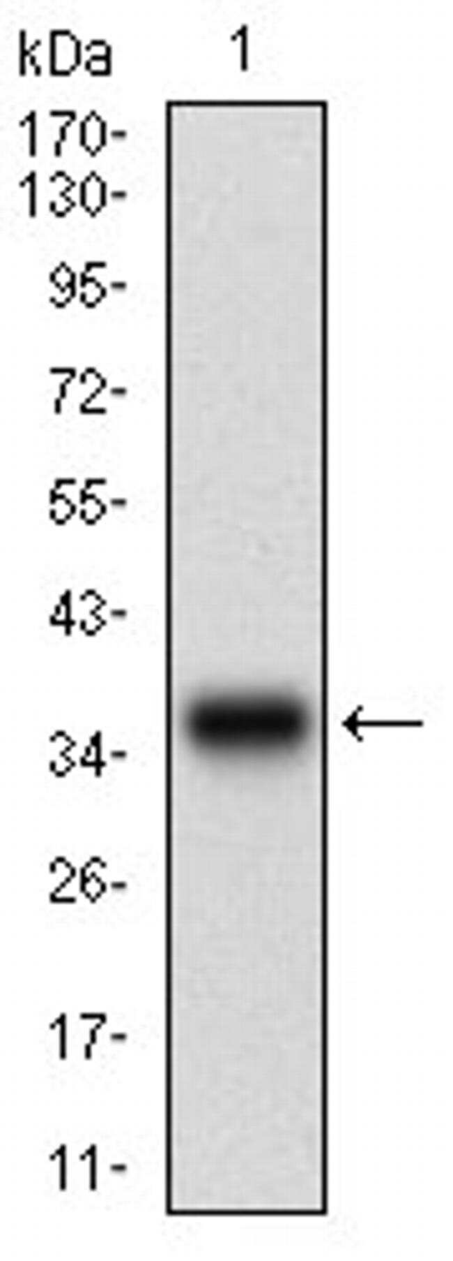 CK2 beta Antibody in Western Blot (WB)