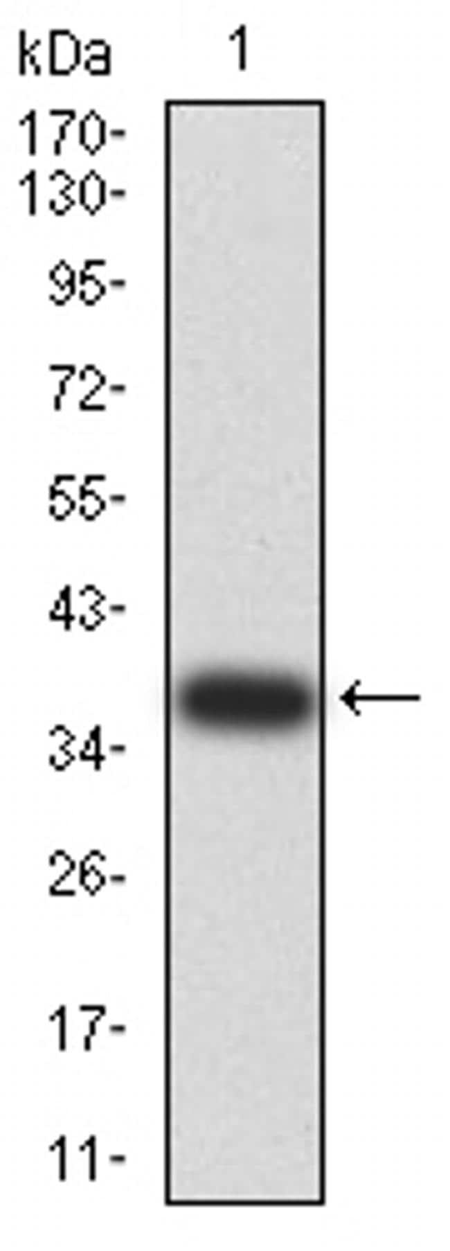 DDX1 Antibody in Western Blot (WB)