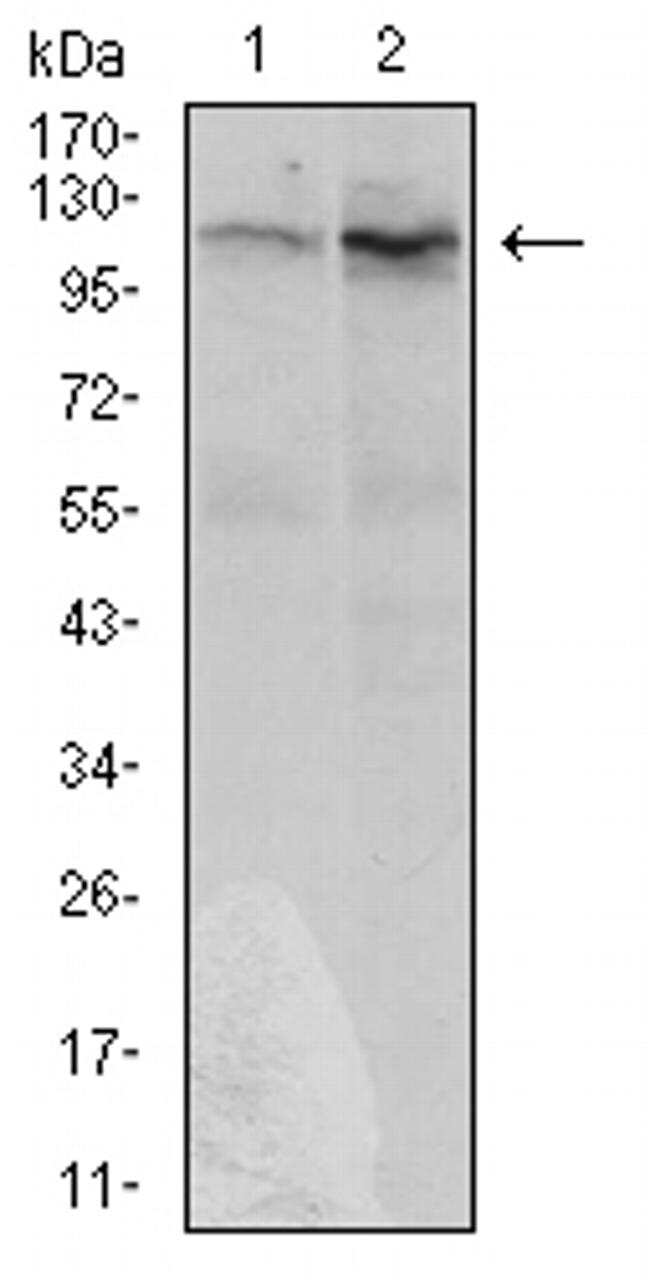 DIS3L2 Antibody in Western Blot (WB)