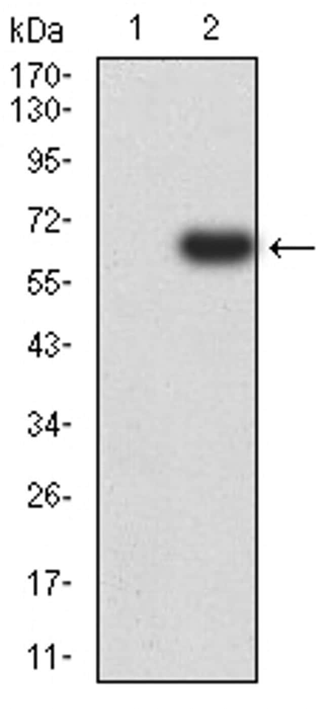 eIF5 Antibody in Western Blot (WB)