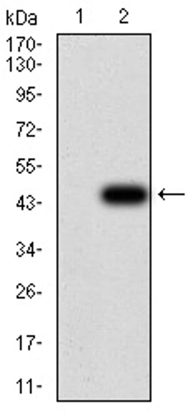 GFPT1 Antibody in Western Blot (WB)