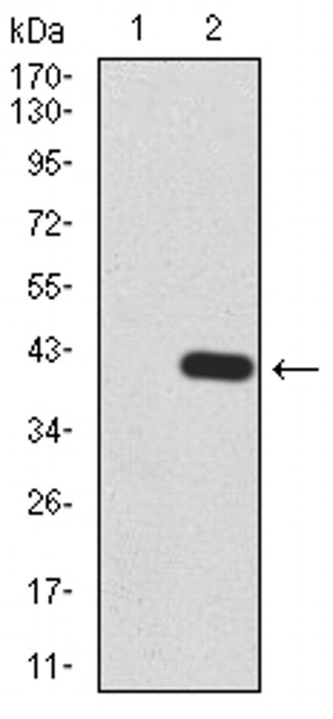 KDM5B Antibody in Western Blot (WB)