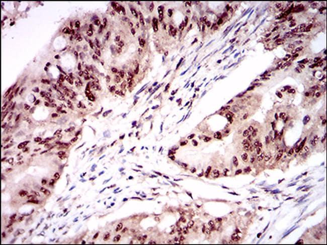 ONECUT3 Antibody in Immunohistochemistry (Paraffin) (IHC (P))