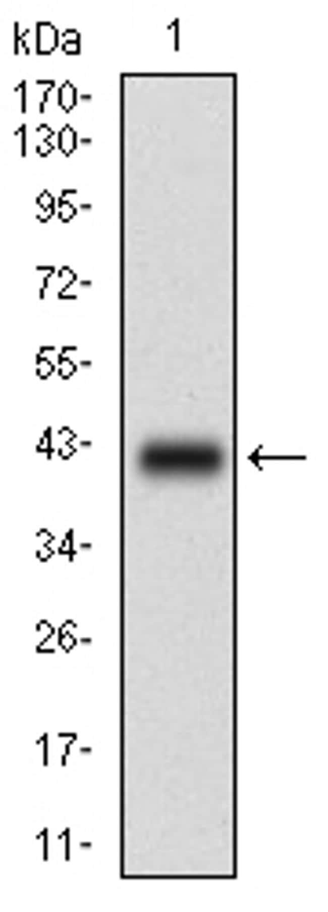 PLAGL1 Antibody in Western Blot (WB)