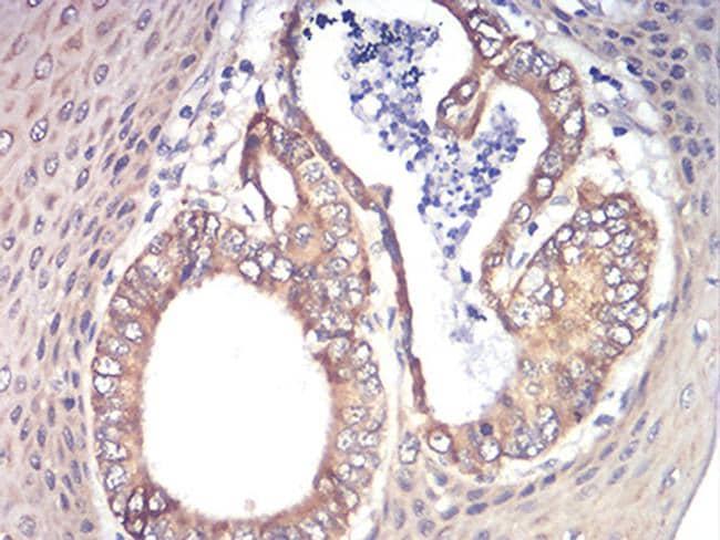 RAD21 Antibody in Immunohistochemistry (Paraffin) (IHC (P))