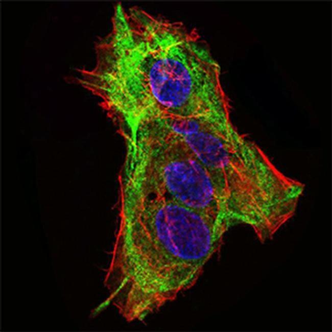 SCP3 Antibody in Immunocytochemistry (ICC/IF)