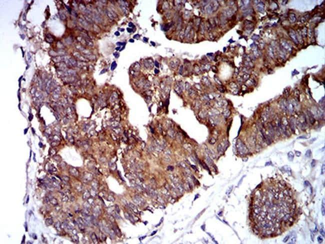 TRIM25 Antibody in Immunohistochemistry (Paraffin) (IHC (P))