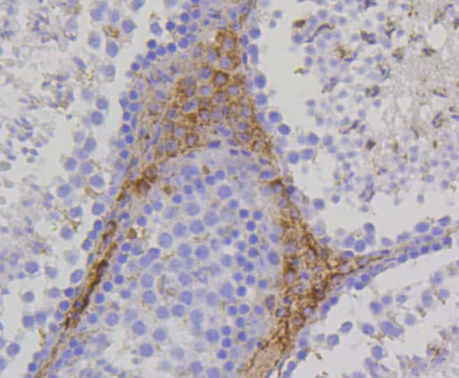 TSPO Antibody in Immunohistochemistry (Paraffin) (IHC (P))