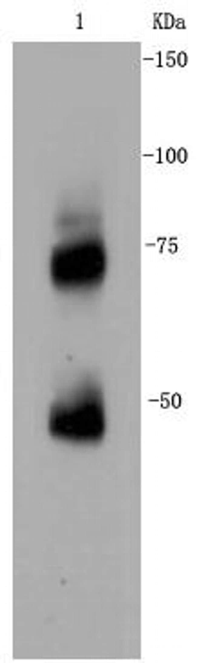 CD271 (NGF Receptor) Antibody in Western Blot (WB)
